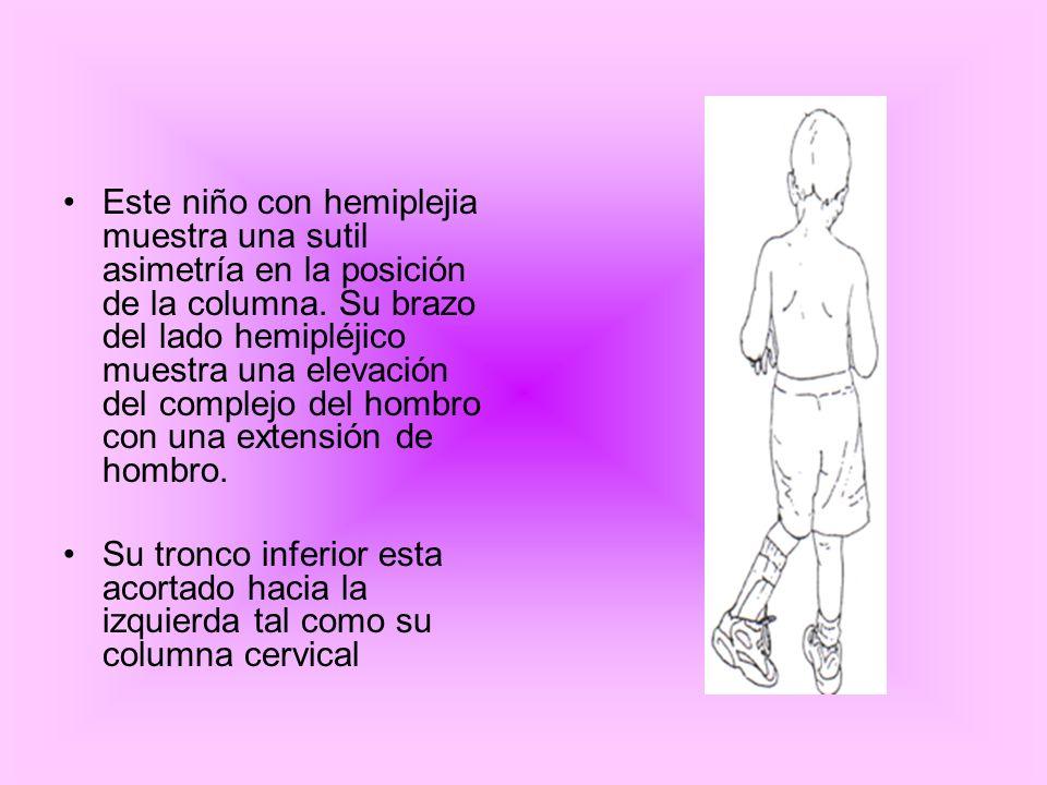Este niño con hemiplejia muestra una sutil asimetría en la posición de la columna. Su brazo del lado hemipléjico muestra una elevación del complejo del hombro con una extensión de hombro.