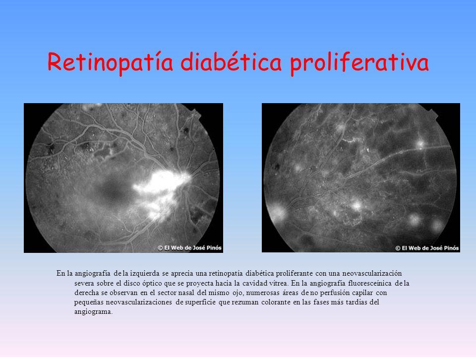 Retinopatía diabética proliferativa