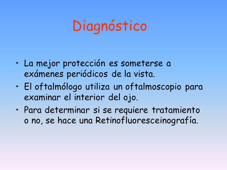 Diagnóstico La mejor protección es someterse a exámenes periódicos de la vista.