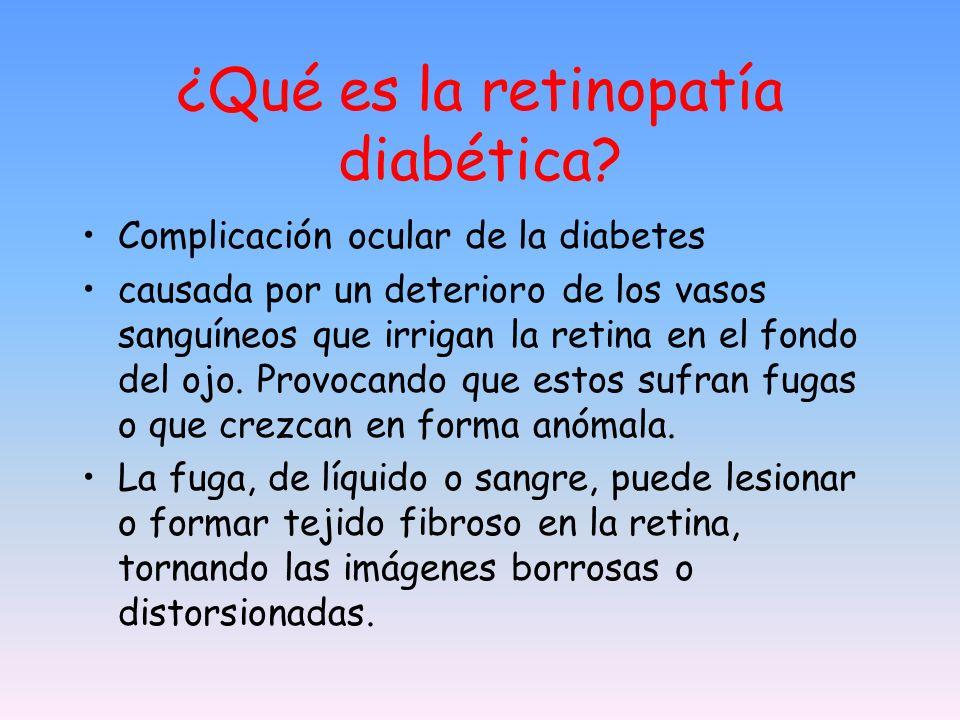 ¿Qué es la retinopatía diabética