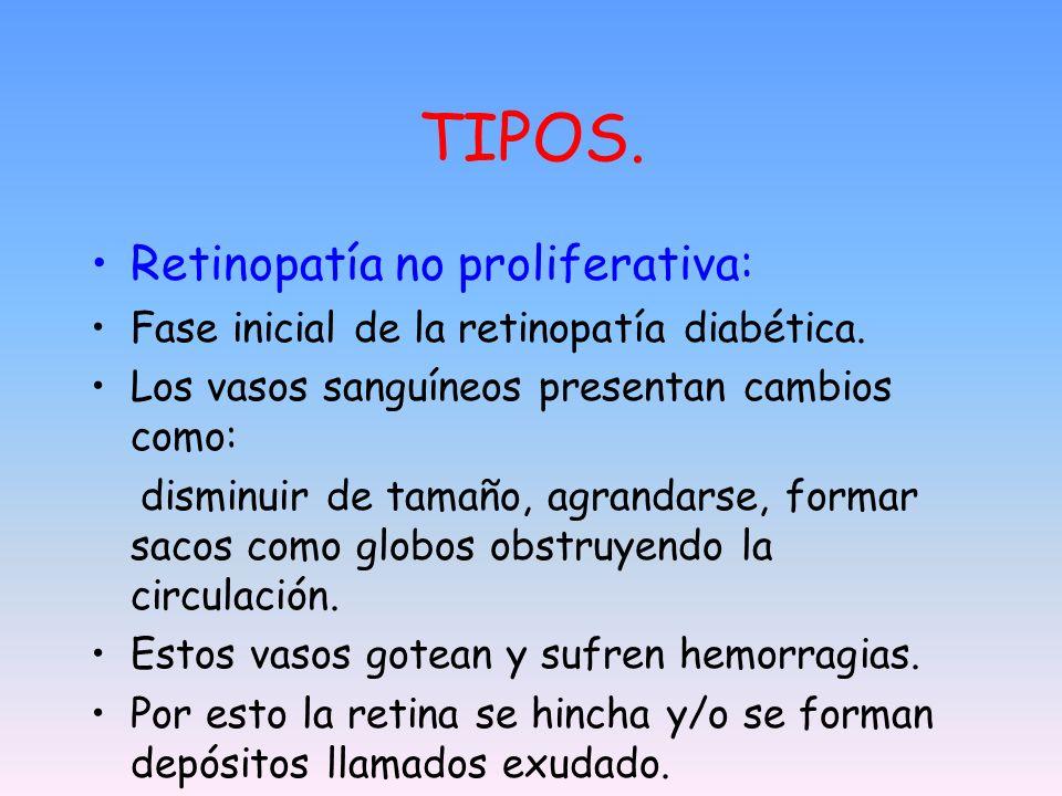 TIPOS. Retinopatía no proliferativa: