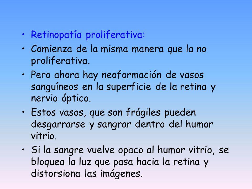 Retinopatía proliferativa: