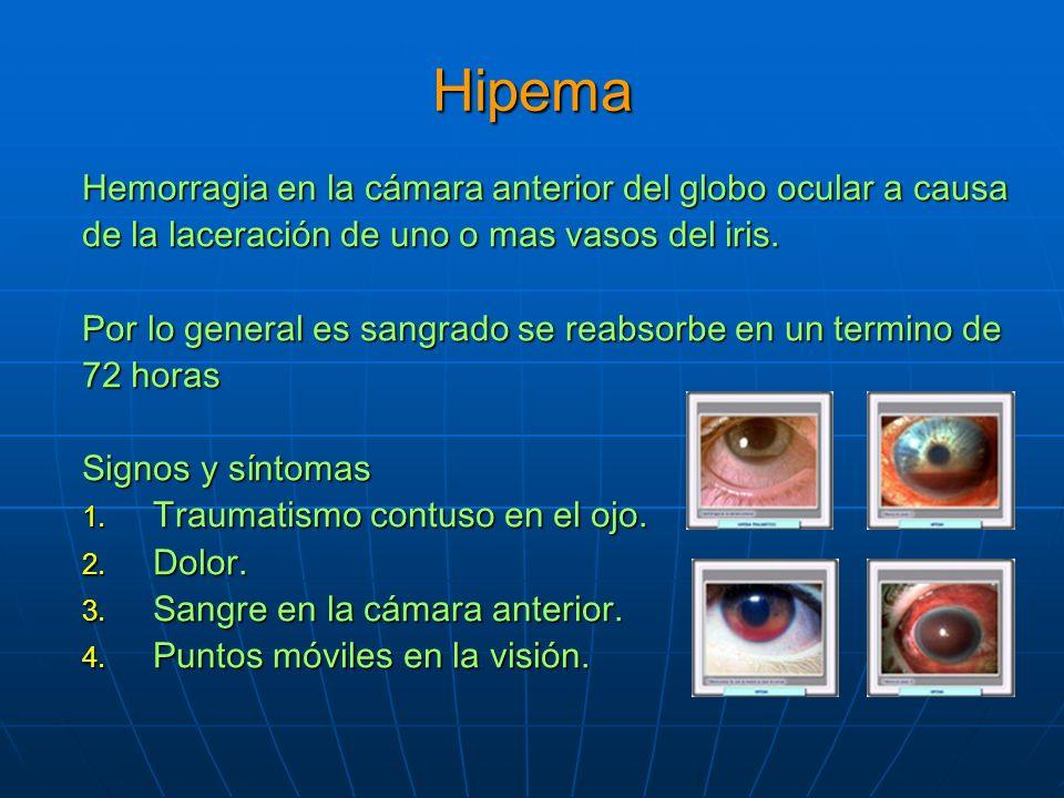 Hipema Hemorragia en la cámara anterior del globo ocular a causa