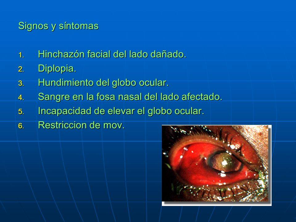 Signos y síntomas Hinchazón facial del lado dañado. Diplopia. Hundimiento del globo ocular. Sangre en la fosa nasal del lado afectado.