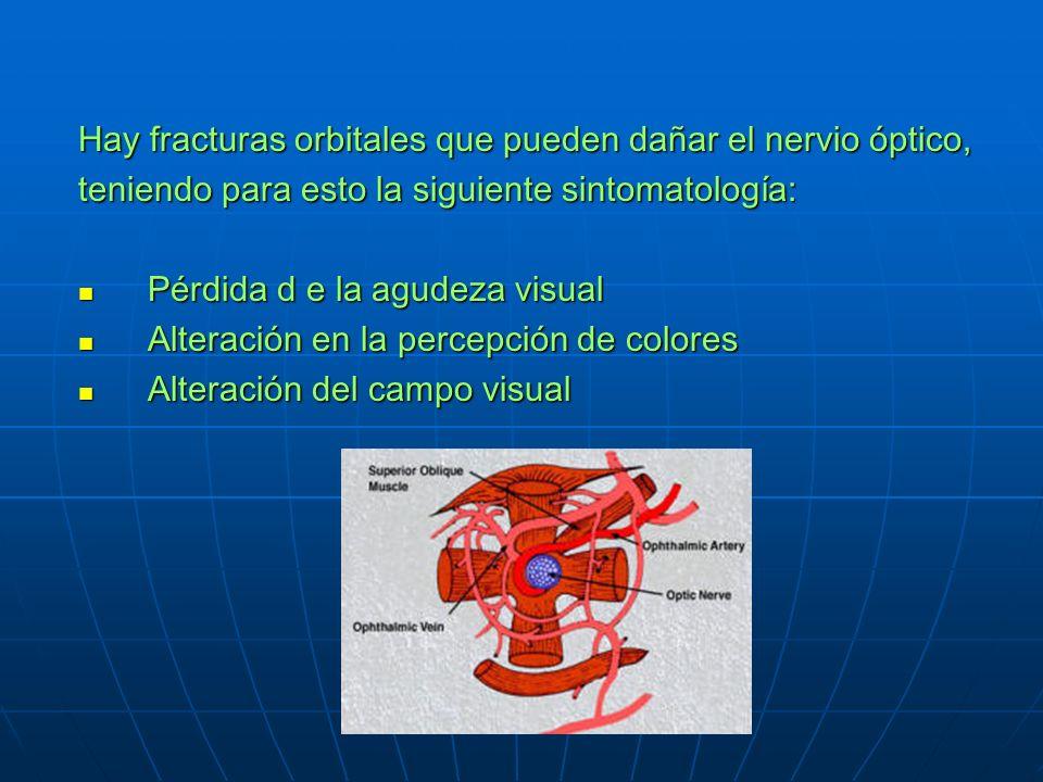 Hay fracturas orbitales que pueden dañar el nervio óptico,
