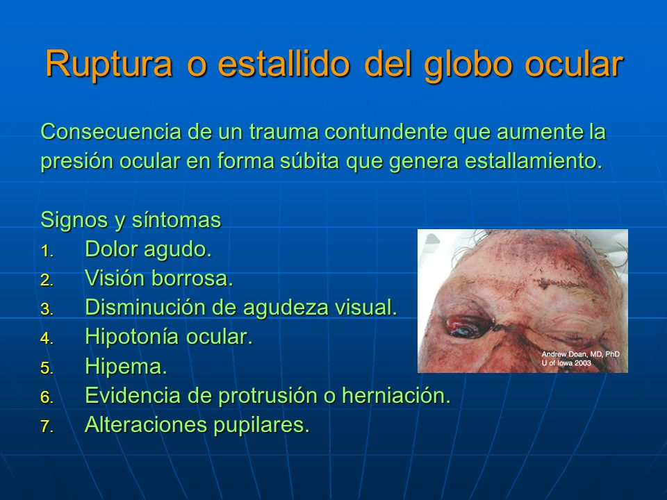 Ruptura o estallido del globo ocular