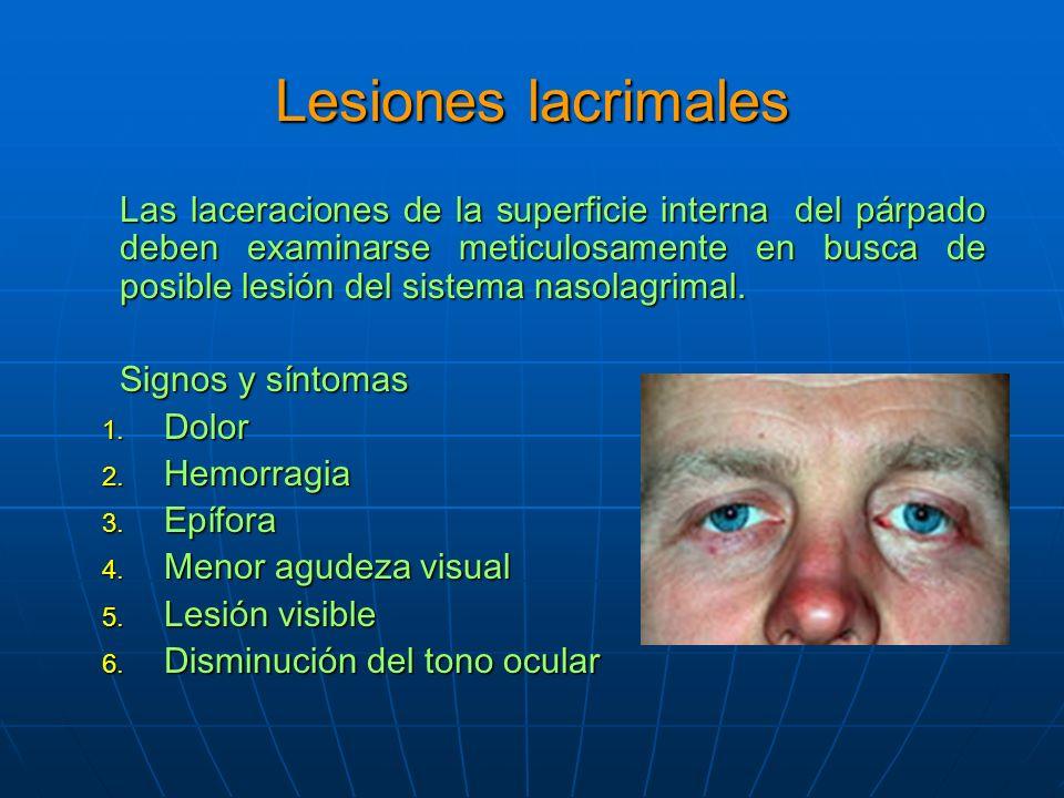 Lesiones lacrimales