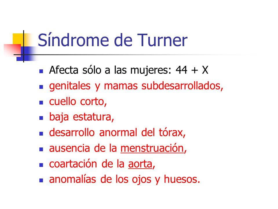 Síndrome de Turner Afecta sólo a las mujeres: 44 + X