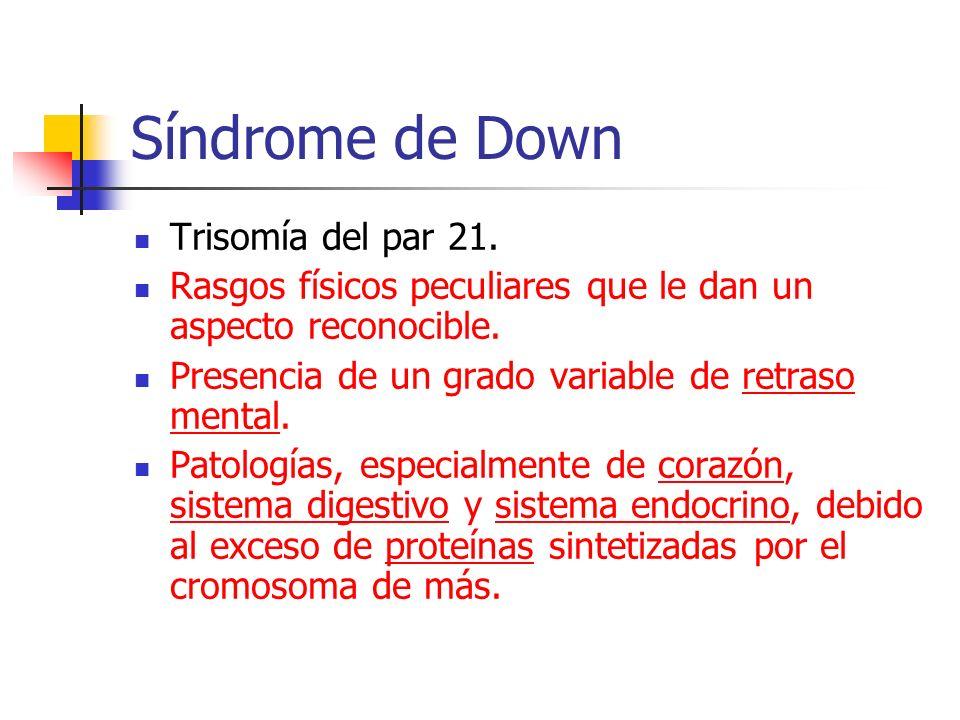 Síndrome de Down Trisomía del par 21.
