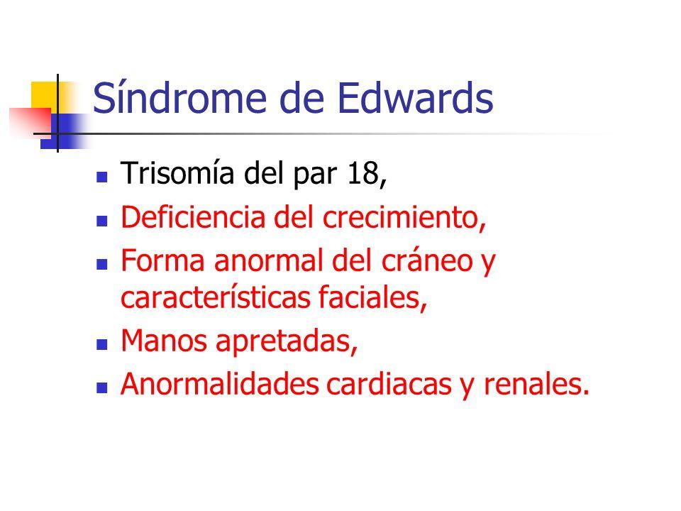 Síndrome de Edwards Trisomía del par 18, Deficiencia del crecimiento,