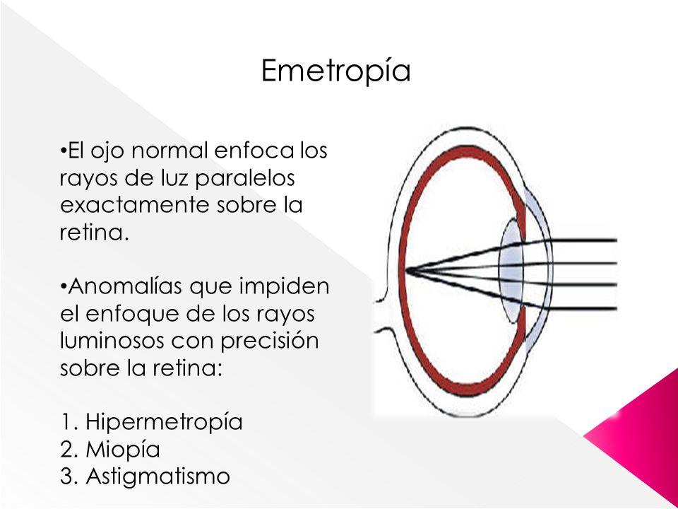 Emetropía El ojo normal enfoca los rayos de luz paralelos exactamente sobre la retina.
