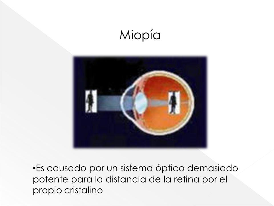 Miopía Es causado por un sistema óptico demasiado potente para la distancia de la retina por el propio cristalino.