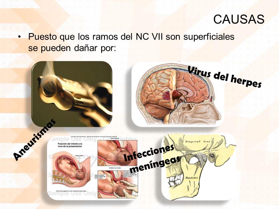 CAUSAS Virus del herpes Aneurismas Infecciones meníngeas