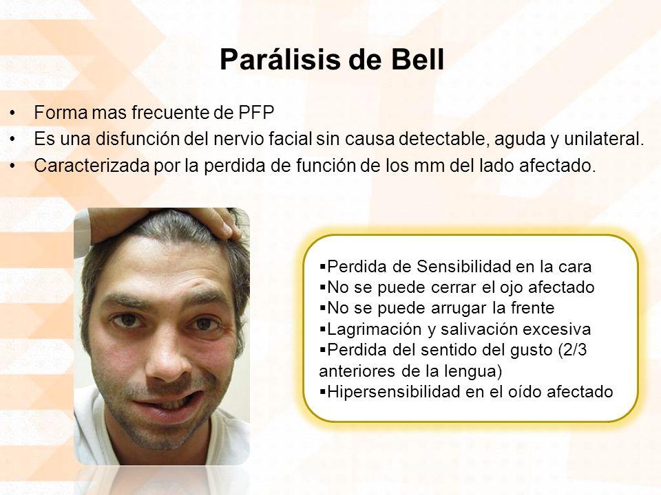 Parálisis de Bell Forma mas frecuente de PFP