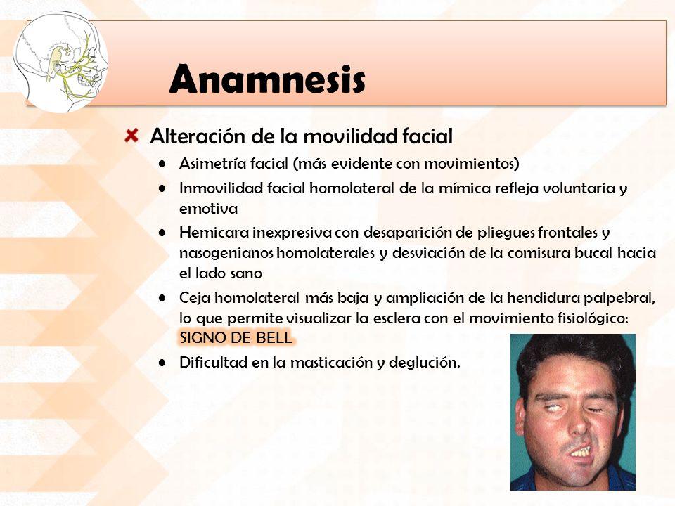 Anamnesis Alteración de la movilidad facial