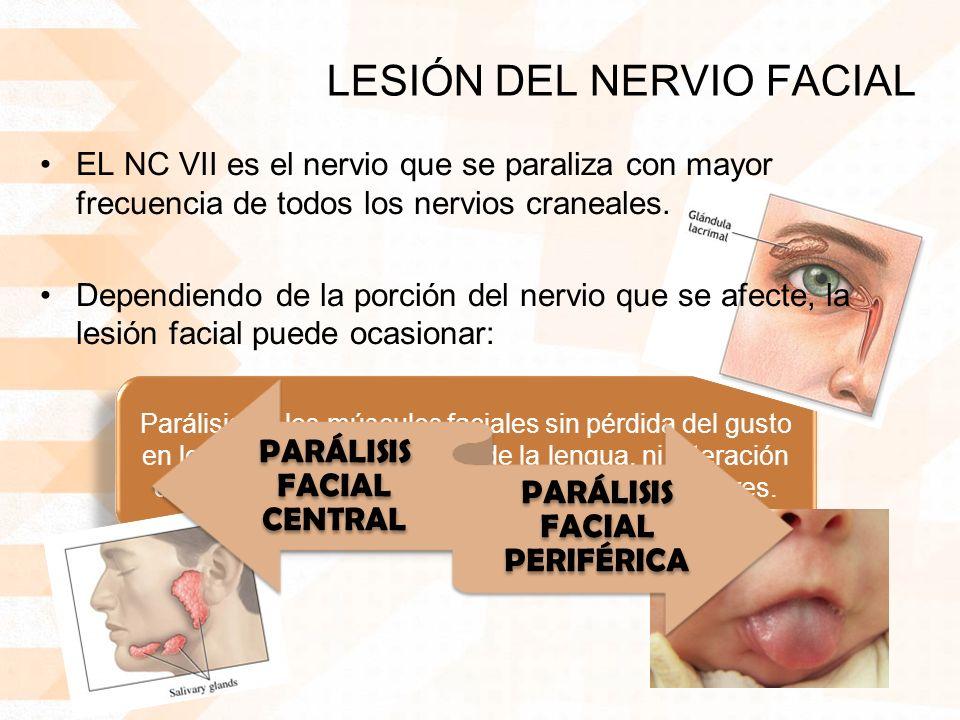 LESIÓN DEL NERVIO FACIAL