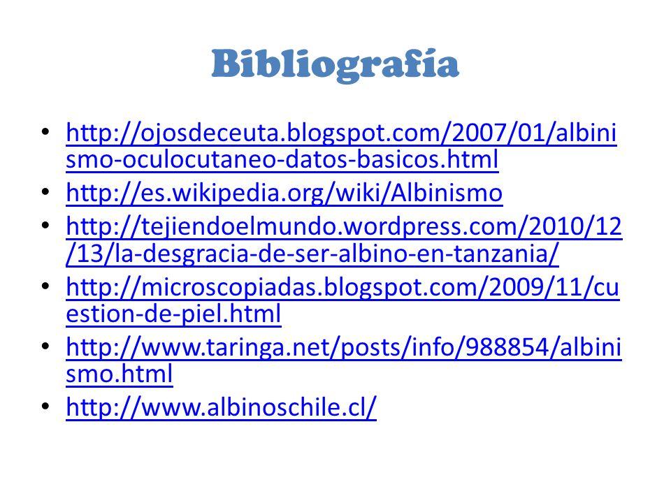 Bibliografía http://ojosdeceuta.blogspot.com/2007/01/albinismo-oculocutaneo-datos-basicos.html. http://es.wikipedia.org/wiki/Albinismo.