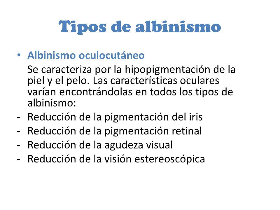 Tipos de albinismo Albinismo oculocutáneo