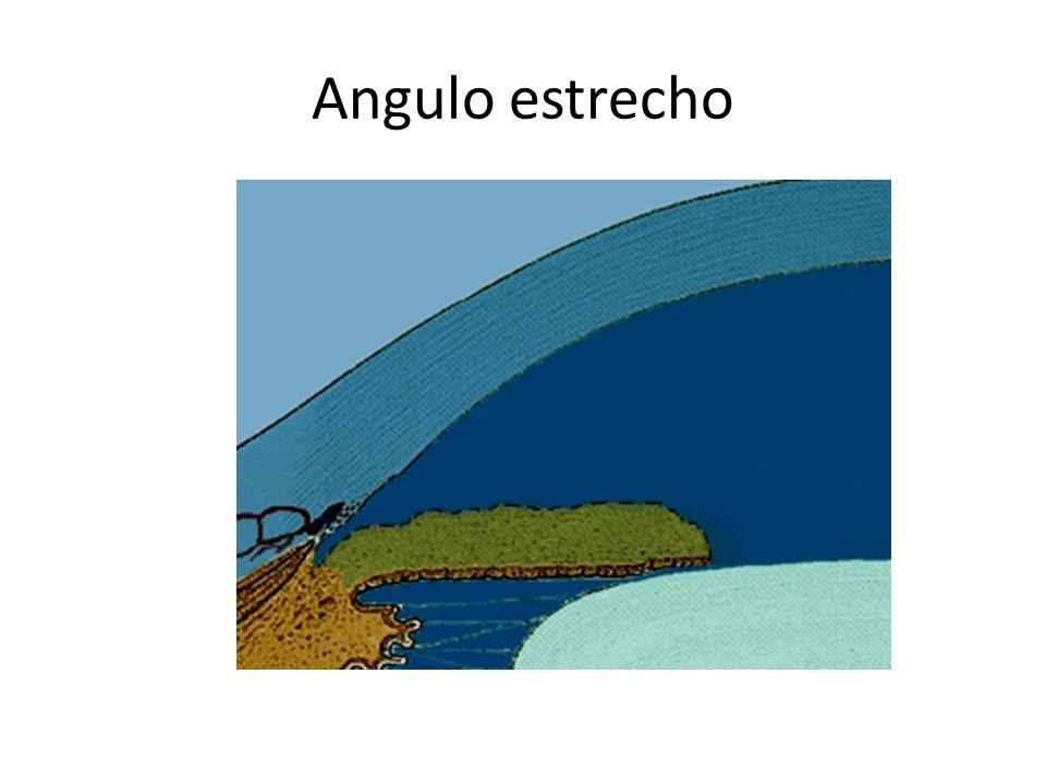 Angulo estrecho