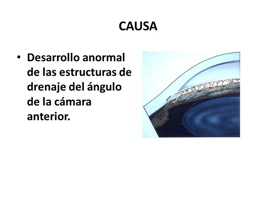 CAUSA Desarrollo anormal de las estructuras de drenaje del ángulo de la cámara anterior.