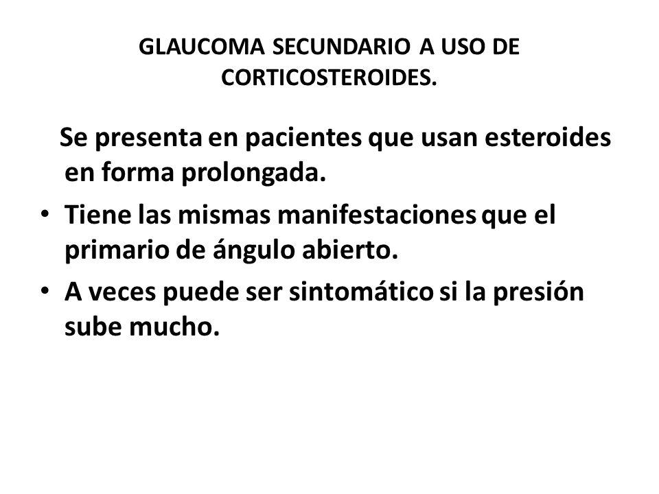 GLAUCOMA SECUNDARIO A USO DE CORTICOSTEROIDES.