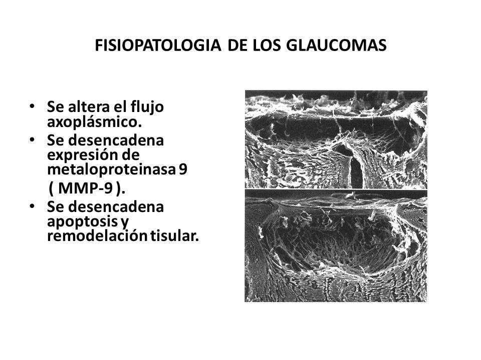 FISIOPATOLOGIA DE LOS GLAUCOMAS