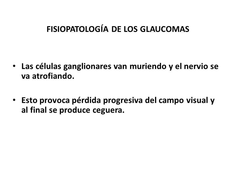 FISIOPATOLOGÍA DE LOS GLAUCOMAS