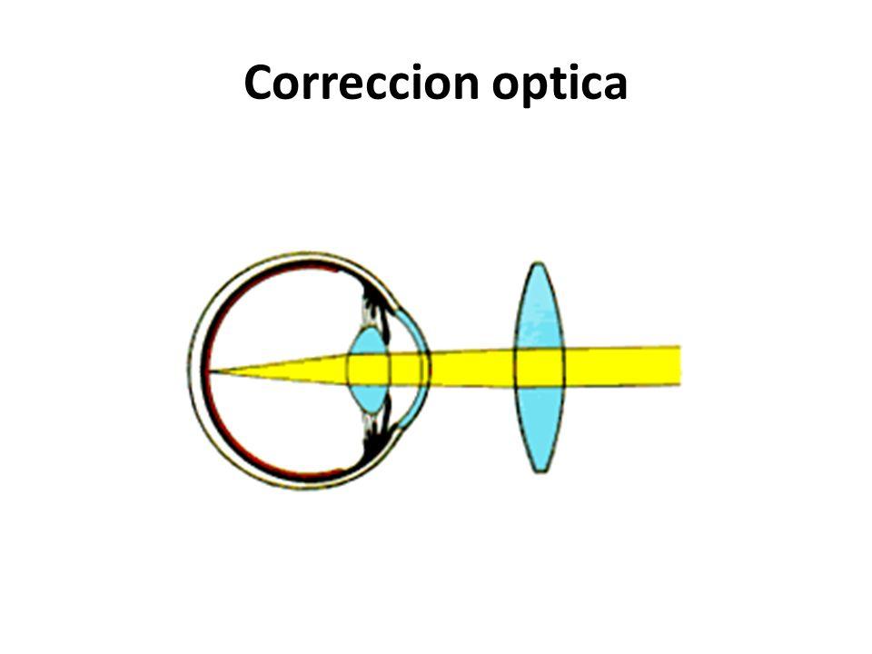 Correccion optica