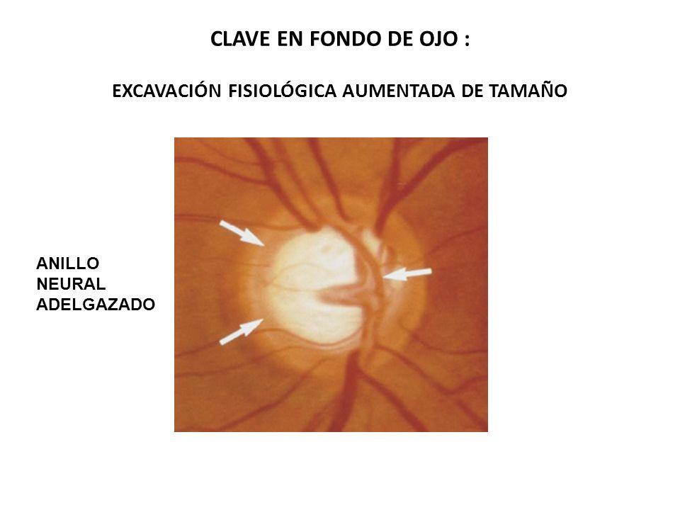 CLAVE EN FONDO DE OJO : EXCAVACIÓN FISIOLÓGICA AUMENTADA DE TAMAÑO