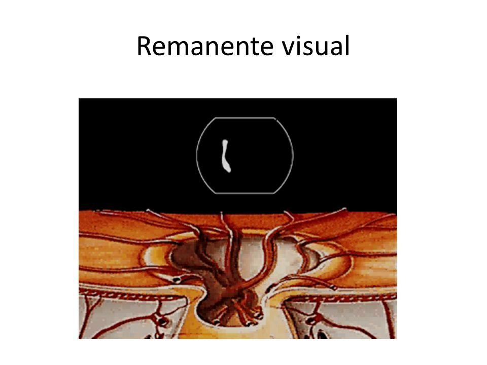 Remanente visual