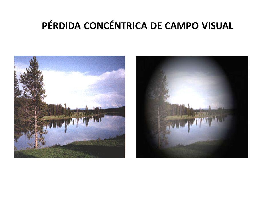 PÉRDIDA CONCÉNTRICA DE CAMPO VISUAL