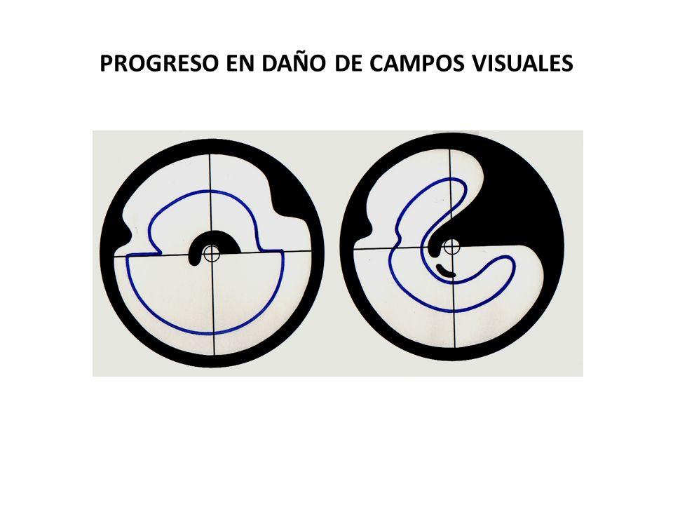 PROGRESO EN DAÑO DE CAMPOS VISUALES