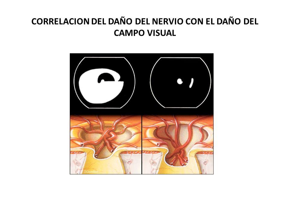 CORRELACION DEL DAÑO DEL NERVIO CON EL DAÑO DEL CAMPO VISUAL