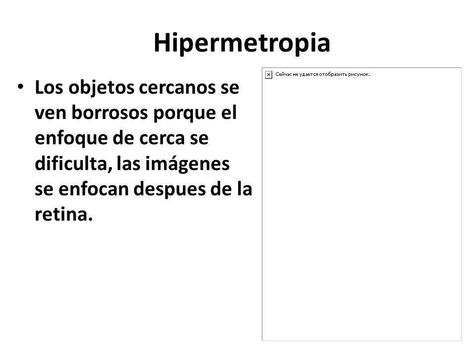 Hipermetropia Los objetos cercanos se ven borrosos porque el enfoque de cerca se dificulta, las imágenes se enfocan despues de la retina.