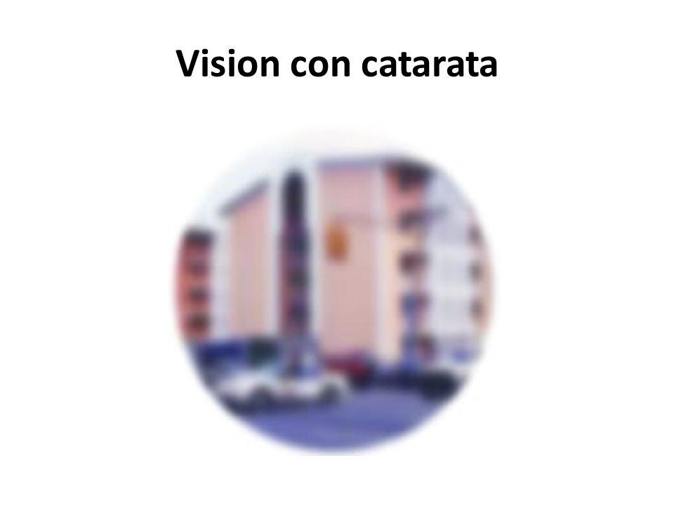 Vision con catarata