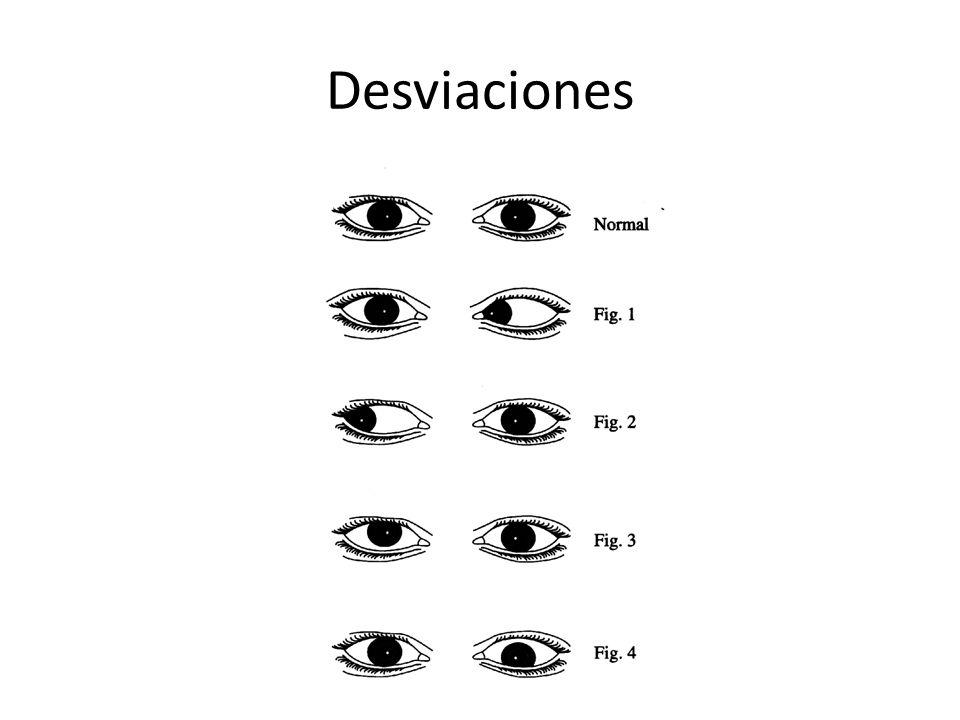 Desviaciones