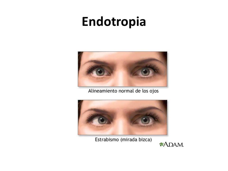 Endotropia