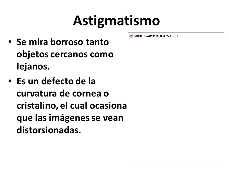 Astigmatismo Se mira borroso tanto objetos cercanos como lejanos.