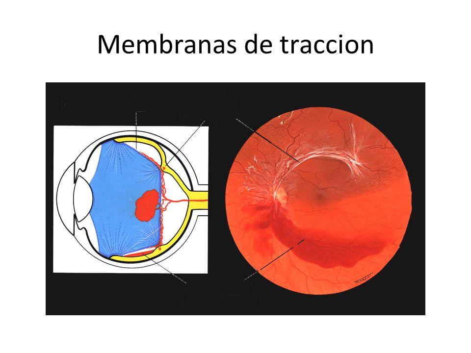 Membranas de traccion