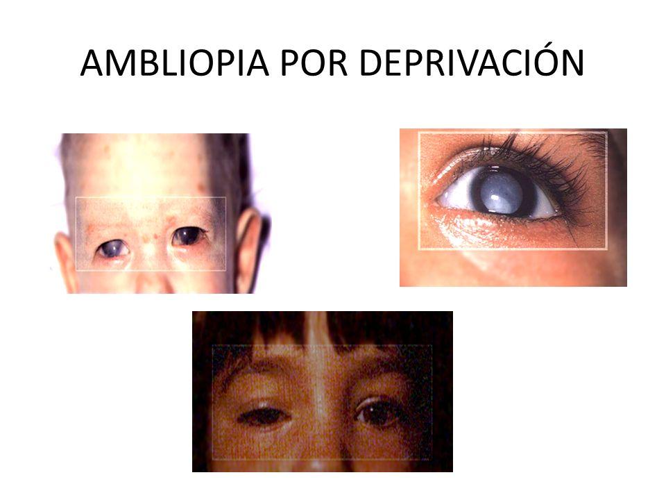 AMBLIOPIA POR DEPRIVACIÓN