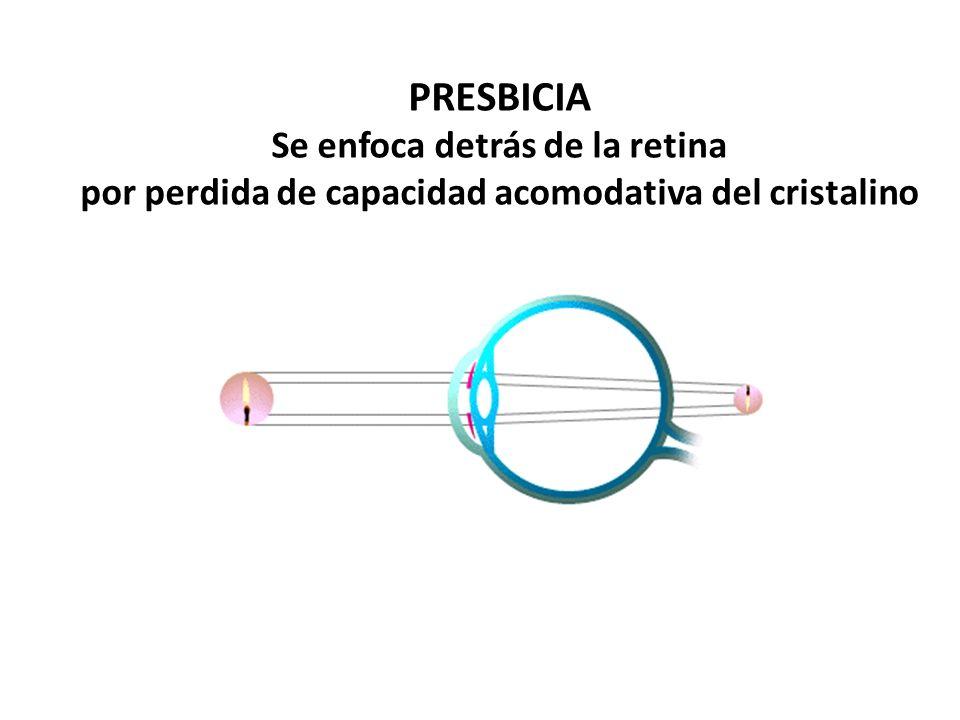 PRESBICIA Se enfoca detrás de la retina por perdida de capacidad acomodativa del cristalino