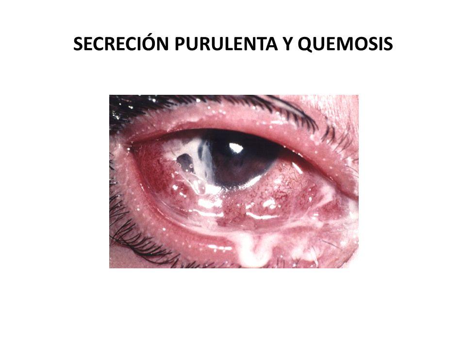 SECRECIÓN PURULENTA Y QUEMOSIS