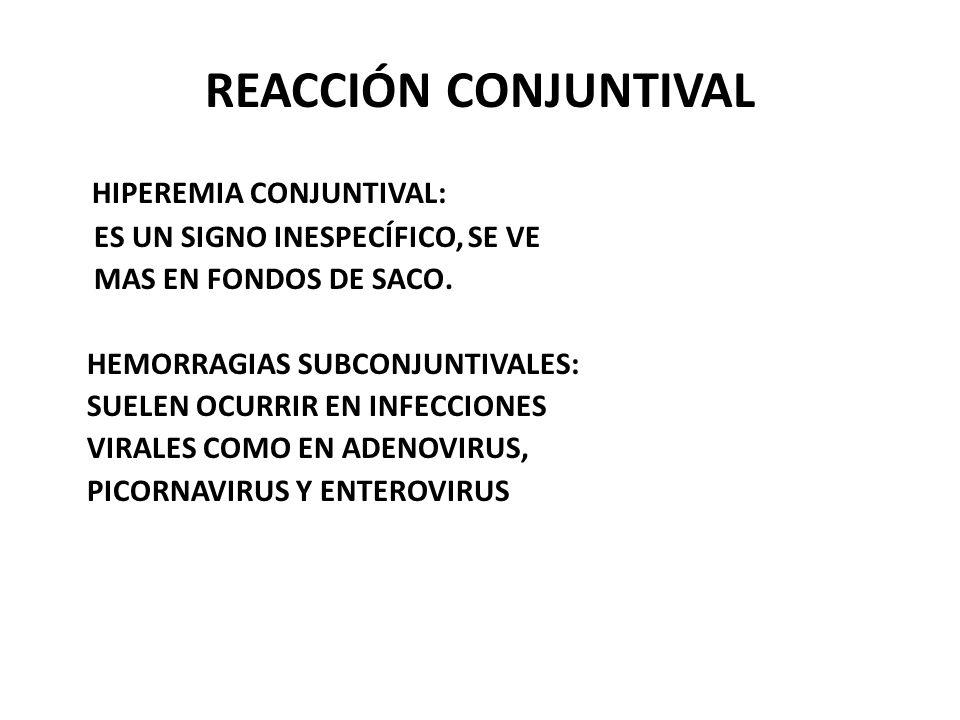 REACCIÓN CONJUNTIVAL HIPEREMIA CONJUNTIVAL: