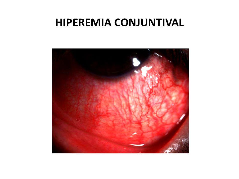 HIPEREMIA CONJUNTIVAL