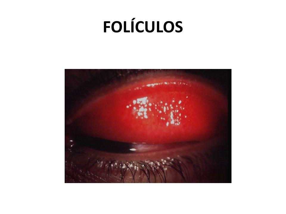 FOLÍCULOS