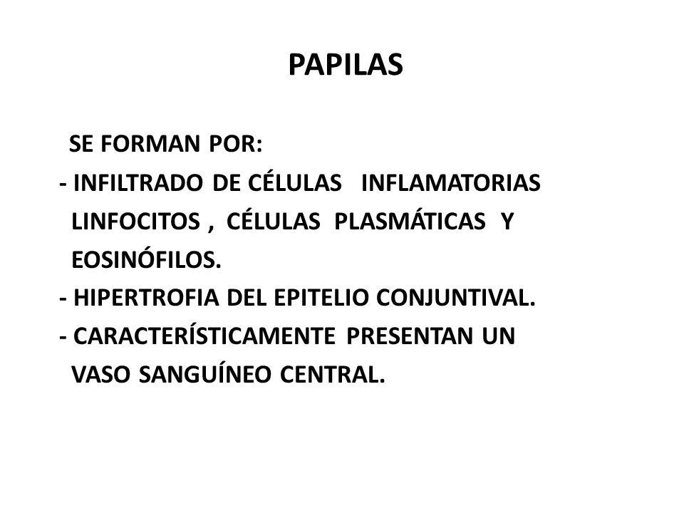 PAPILAS SE FORMAN POR: - INFILTRADO DE CÉLULAS INFLAMATORIAS