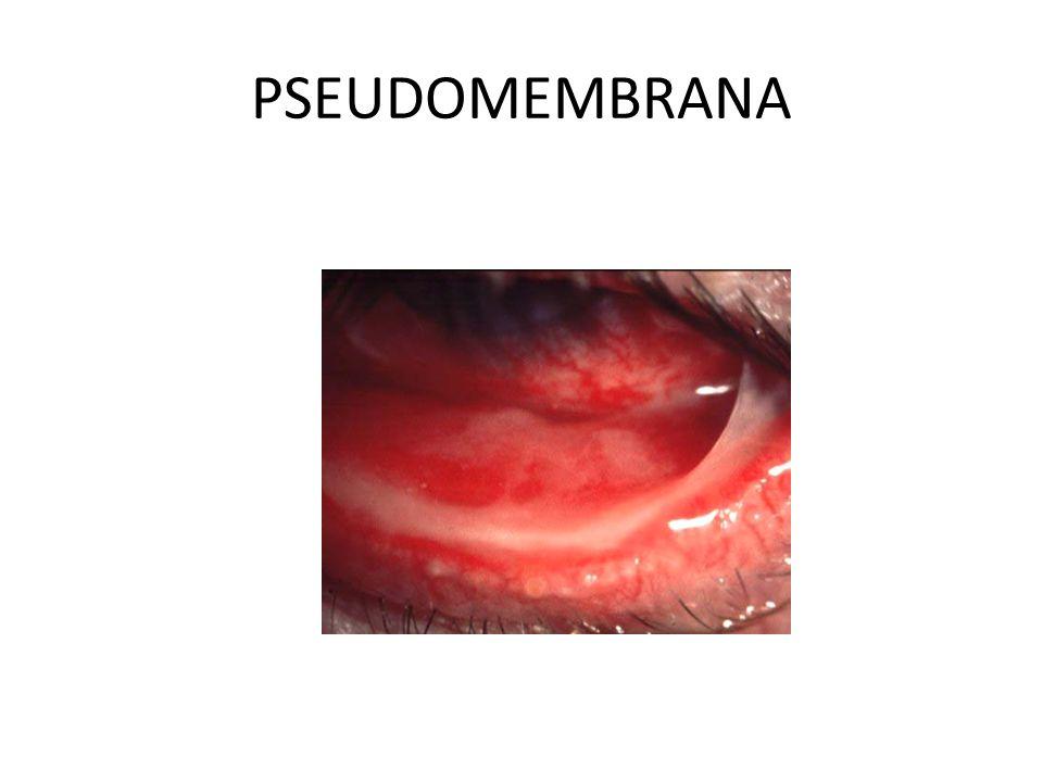 PSEUDOMEMBRANA