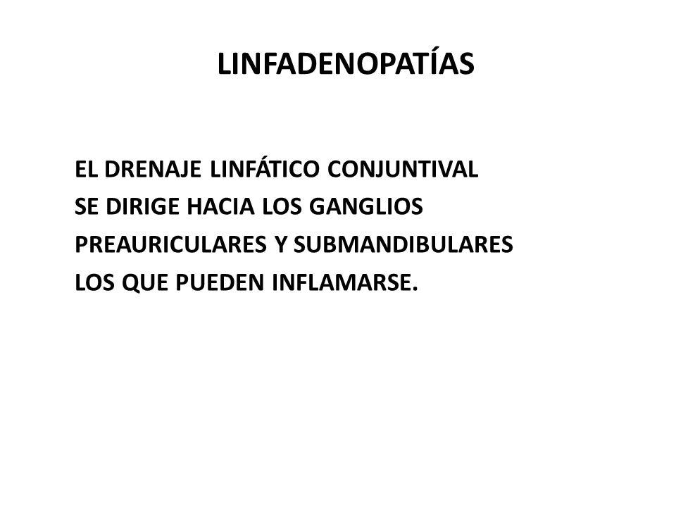 LINFADENOPATÍAS EL DRENAJE LINFÁTICO CONJUNTIVAL SE DIRIGE HACIA LOS GANGLIOS PREAURICULARES Y SUBMANDIBULARES LOS QUE PUEDEN INFLAMARSE.
