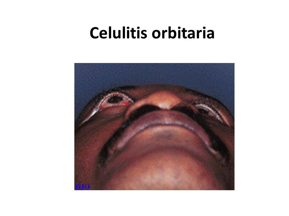 Celulitis orbitaria
