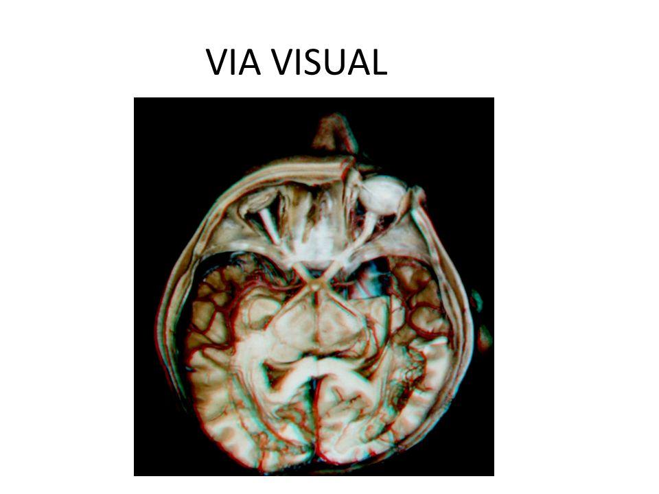 OVERVIEW VIA VISUAL